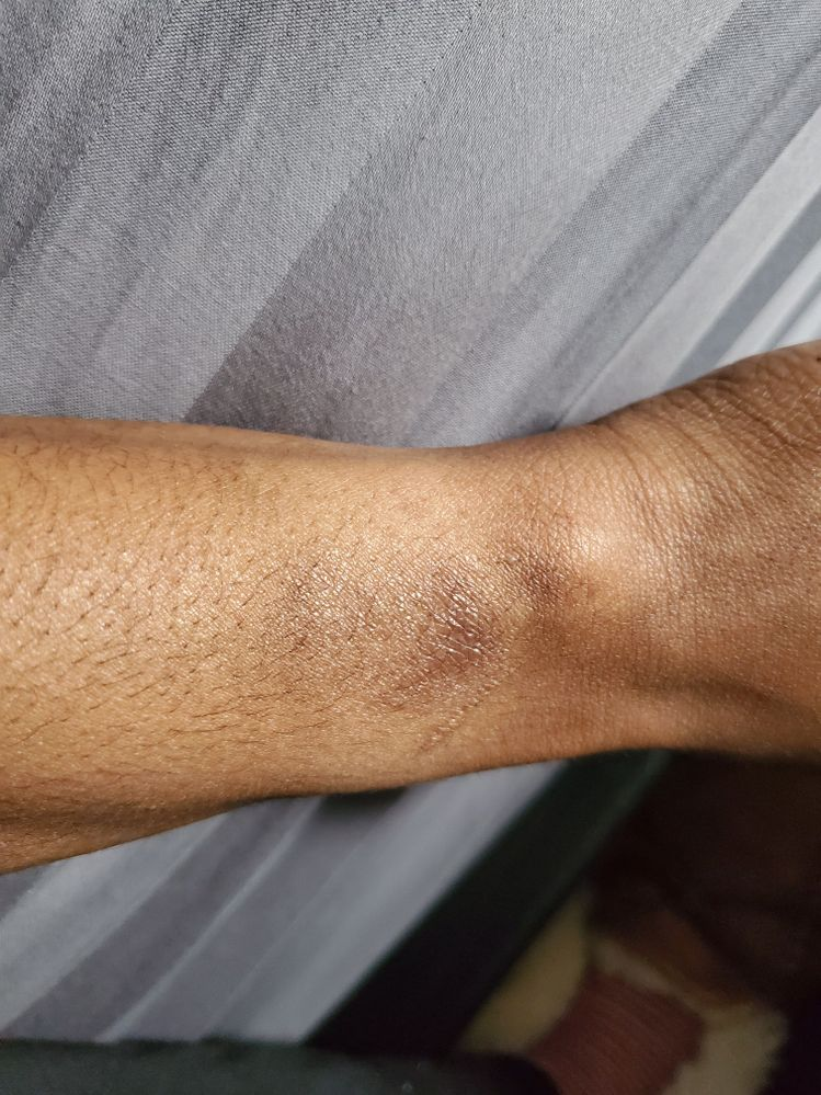 This is my  wrist i was like is this just me but i seen you guys all with problem.. they needs to do better cause not suppise to happen or was we told this