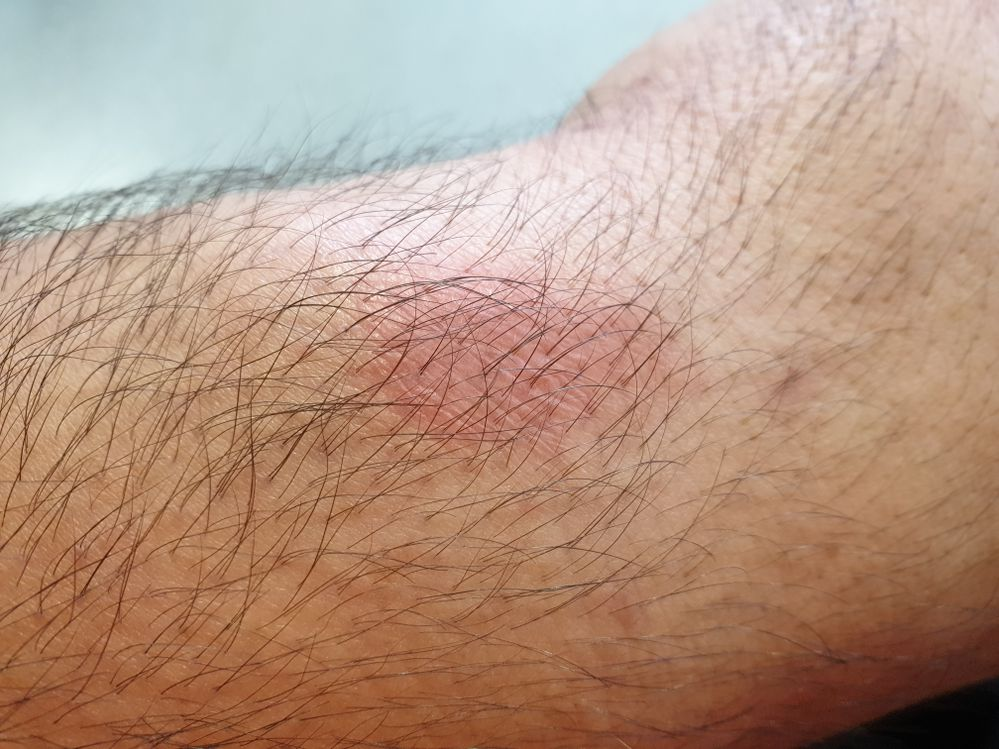 Rash on part of my wrist from wearing the new 2018 46mm watch