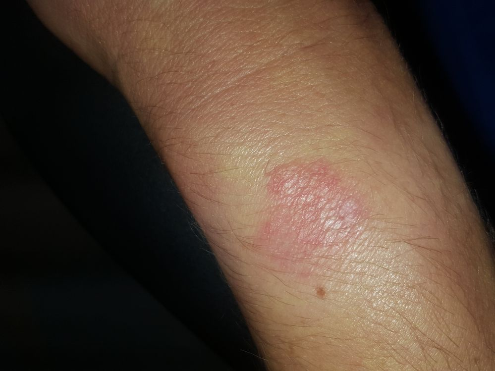 """These pictures do not do my """"rash"""" justice"""