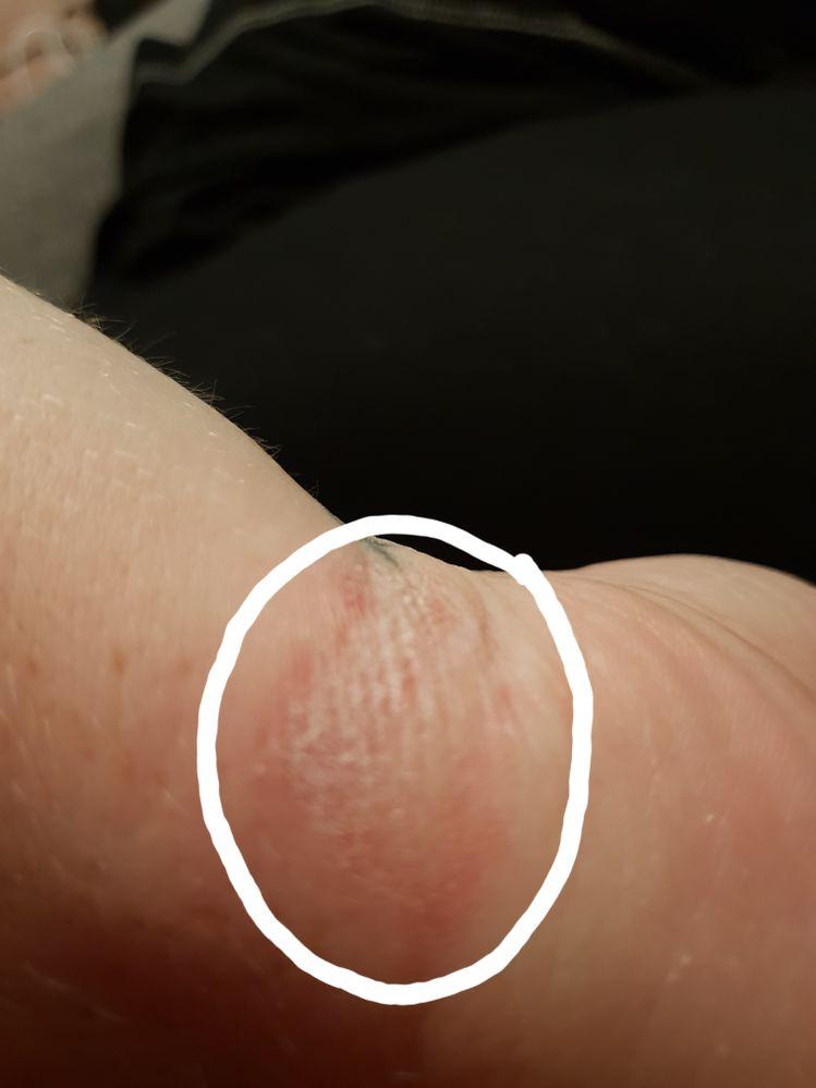 Left wrist watch strap irritation.