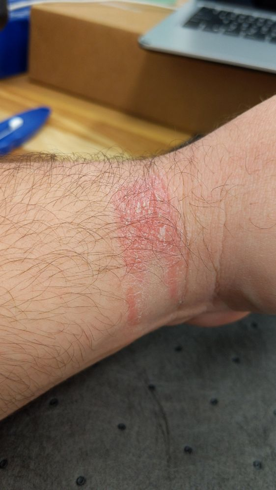 Inside of left wrist painful rash. Irritation on top of wrist under watch itself is just red and itching