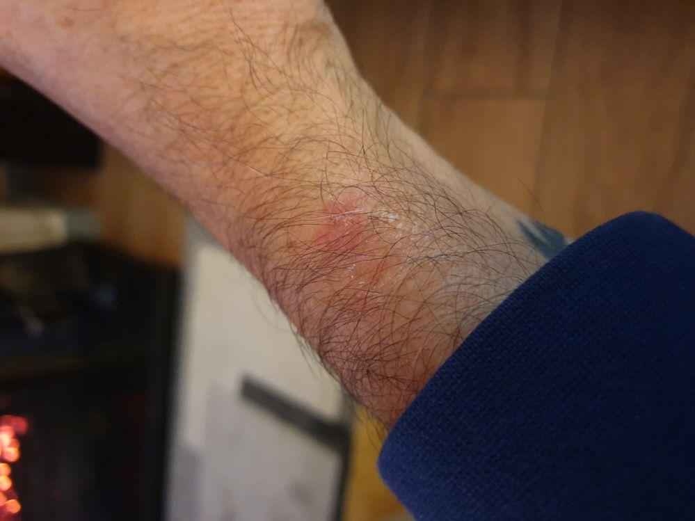 Wrist Burn!